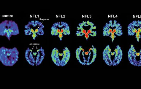 Recognizing Concussions in Student-Athletes